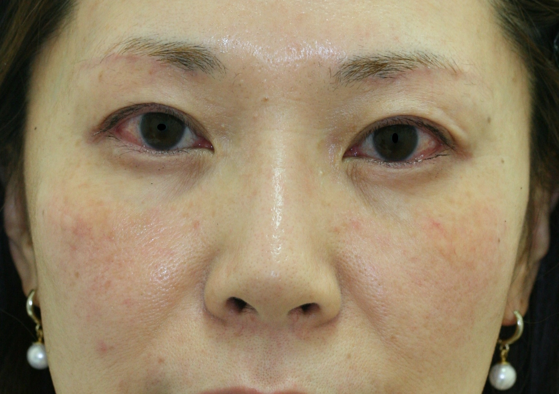 30代 女性 - 上眼瞼リフト(眉毛下切開)(アフター)