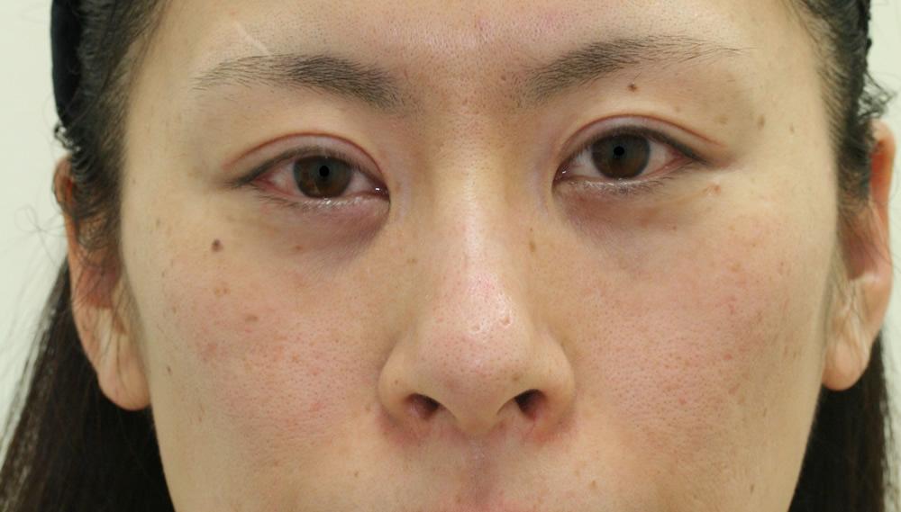 まぶたのたるみ・二重 - 全切開重瞼術の症例写真(施術後)