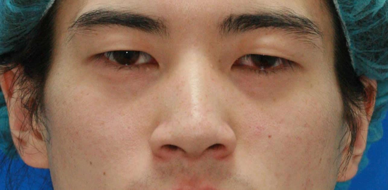 まぶたのたるみ・二重 - 切らない眼瞼下垂術の症例写真(施術前)