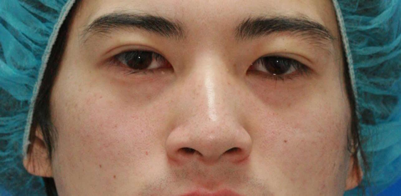 まぶたのたるみ・二重 - 切らない眼瞼下垂術の症例写真(施術後)