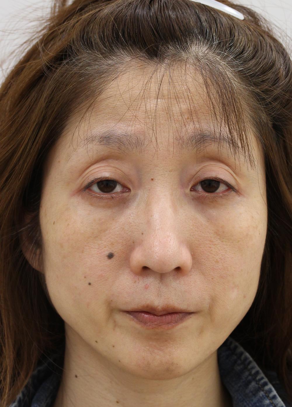 まぶたのたるみ・二重 - 眼瞼下垂術の症例写真(施術前)