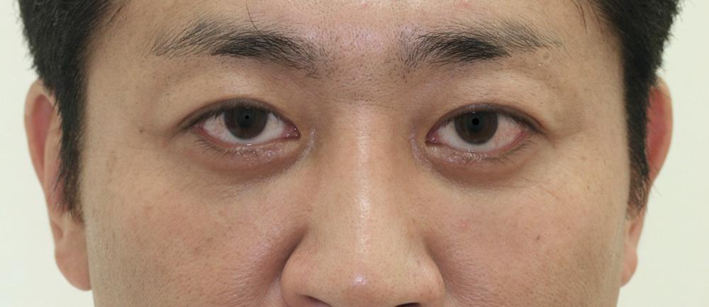 まぶたのたるみ・二重 - 3点埋没法の症例写真(施術後)