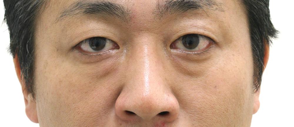 まぶたのたるみ・二重 - 3点埋没法の症例写真(施術前)