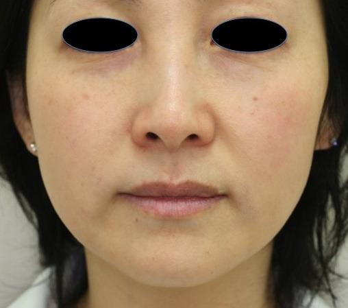 顔のたるみ(シワ・ほうれい線)- マエストラRFの症例写真(施術後)