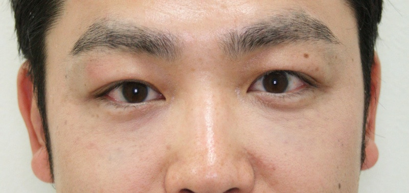 30代 男性 - ヒアルロン酸注入(アフター)