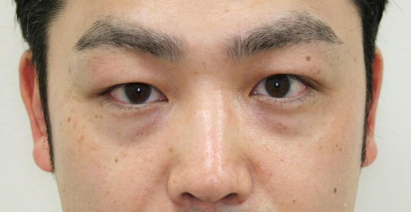 30代 男性 - ヒアルロン酸注入(ビフォー)
