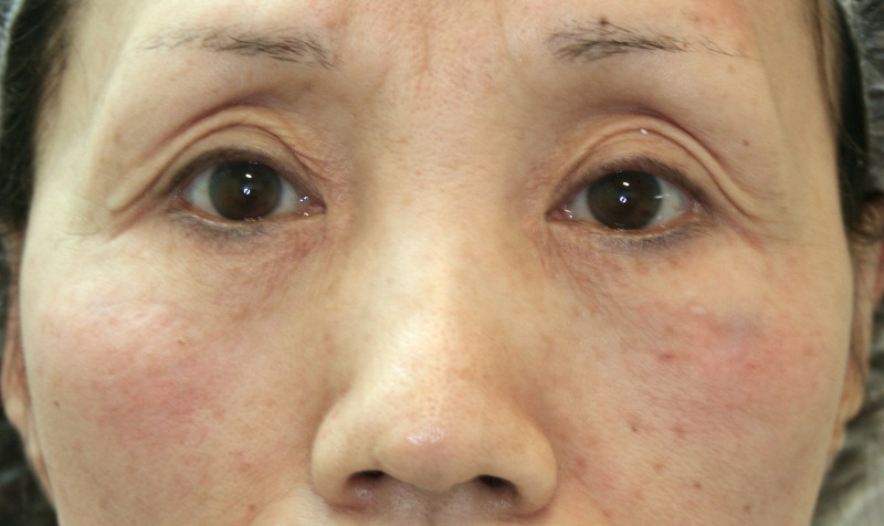 目のクマ・たるみ(膨らみ・凹み)- ヒアルロン酸注入の症例写真(施術後)