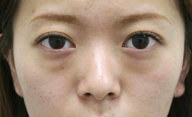 目のクマ・たるみ(膨らみ・凹み)- ヒアルロン酸注入の症例写真(施術前)