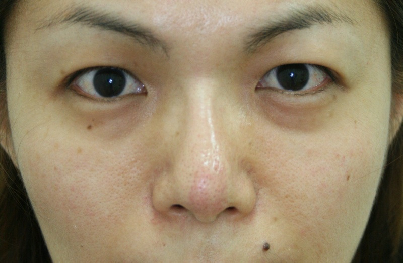 30代 女性 - ヒアルロン酸注入(ビフォー)