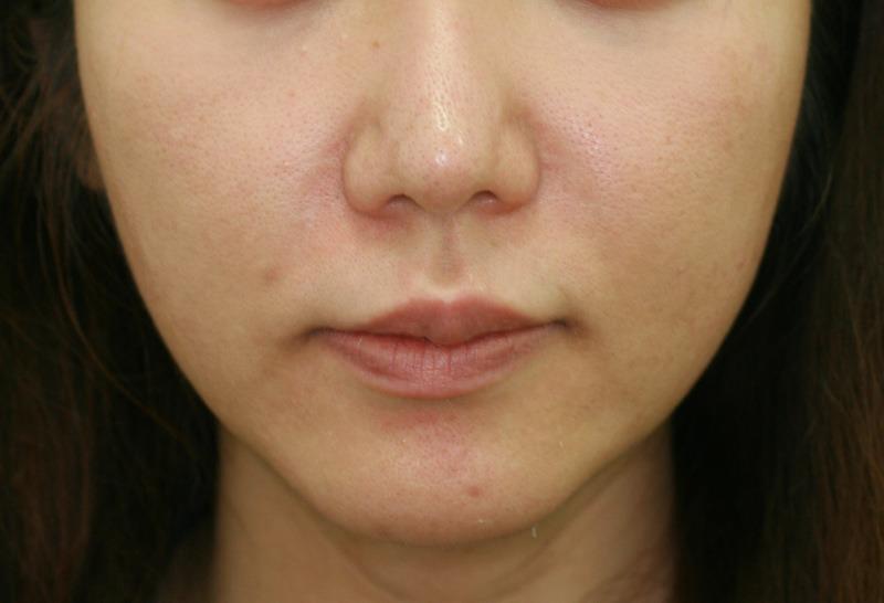 頬 - ウルティマアンサンブルの症例写真(施術前)