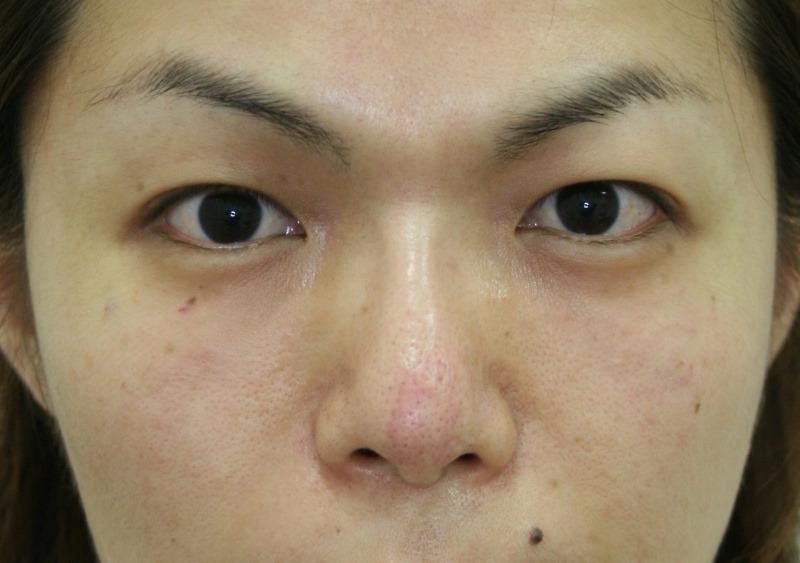 30代 女性 - ヒアルロン酸注入(アフター)
