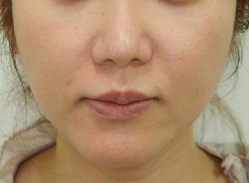 頬 - ウルティマアンサンブルの症例写真(施術後)