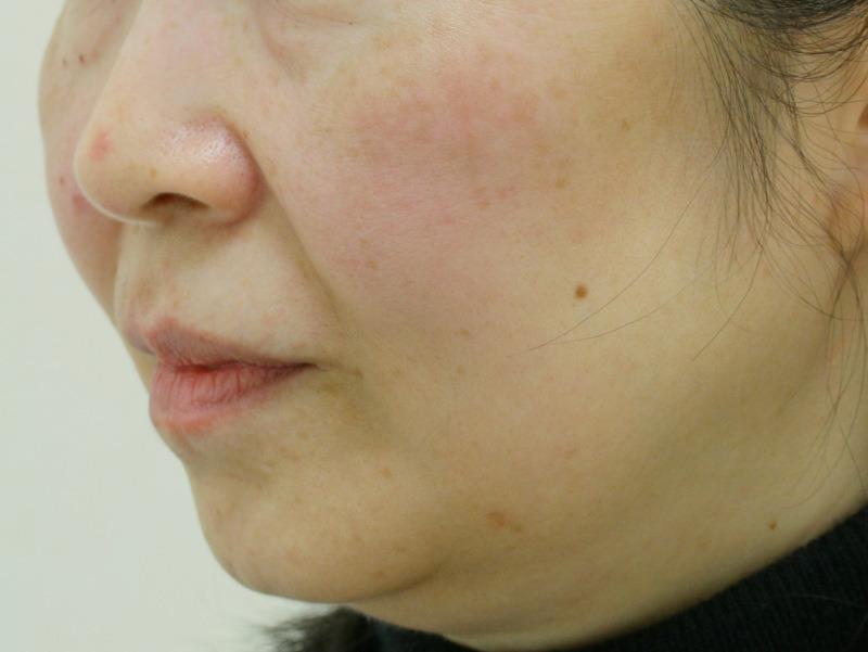 顔のたるみ(シワ・ほうれい線)- リードファインリフトの症例写真(施術前)