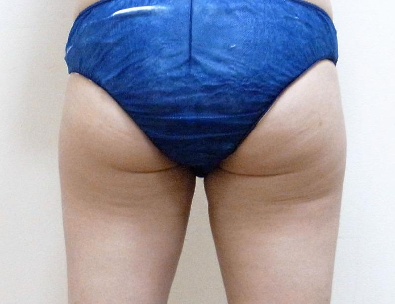 太もも・お尻 - ライポソニックスの症例写真(施術後)
