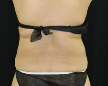 背中 - リポコントラスト、クールスカルプティングの症例写真(施術後)