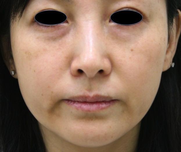 顔のたるみ(シワ・ほうれい線)- マエストラRFの症例写真(施術前)