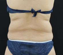 背中 - リポコントラスト、クールスカルプティングの症例写真(施術前)