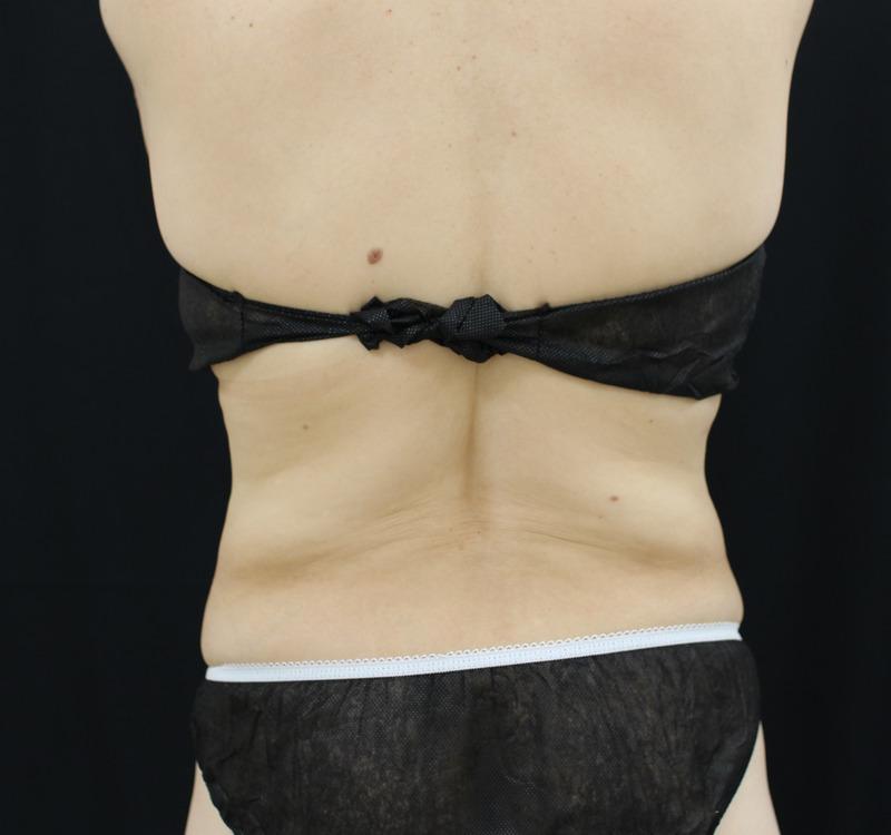 背中 - スカルプシュア、 リポセルの症例写真(施術後)