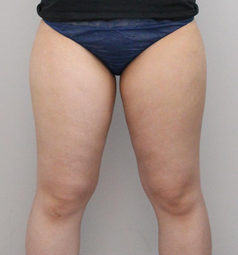 太もも - ライポソニックスの症例写真(施術前)