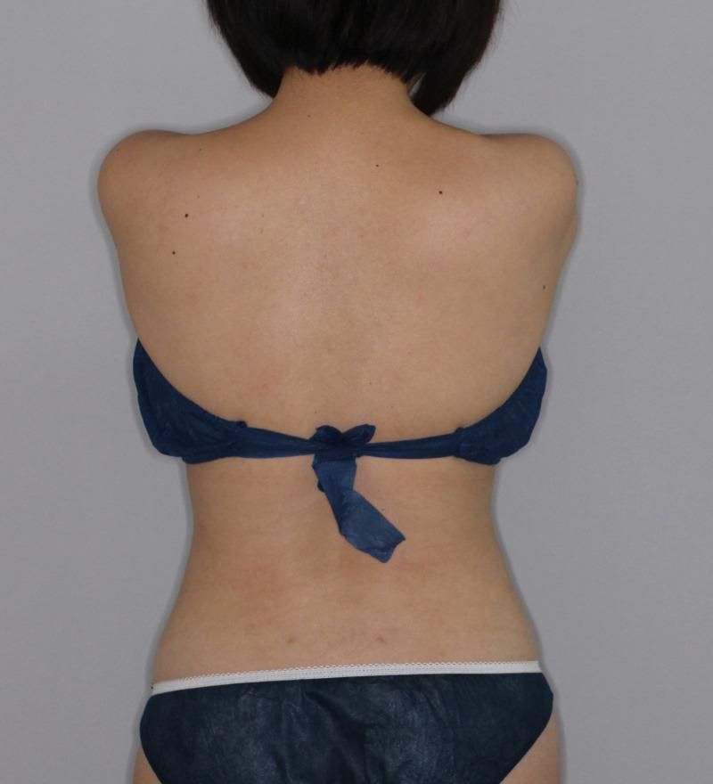 背中 - ライポソニックスの症例写真(施術後)