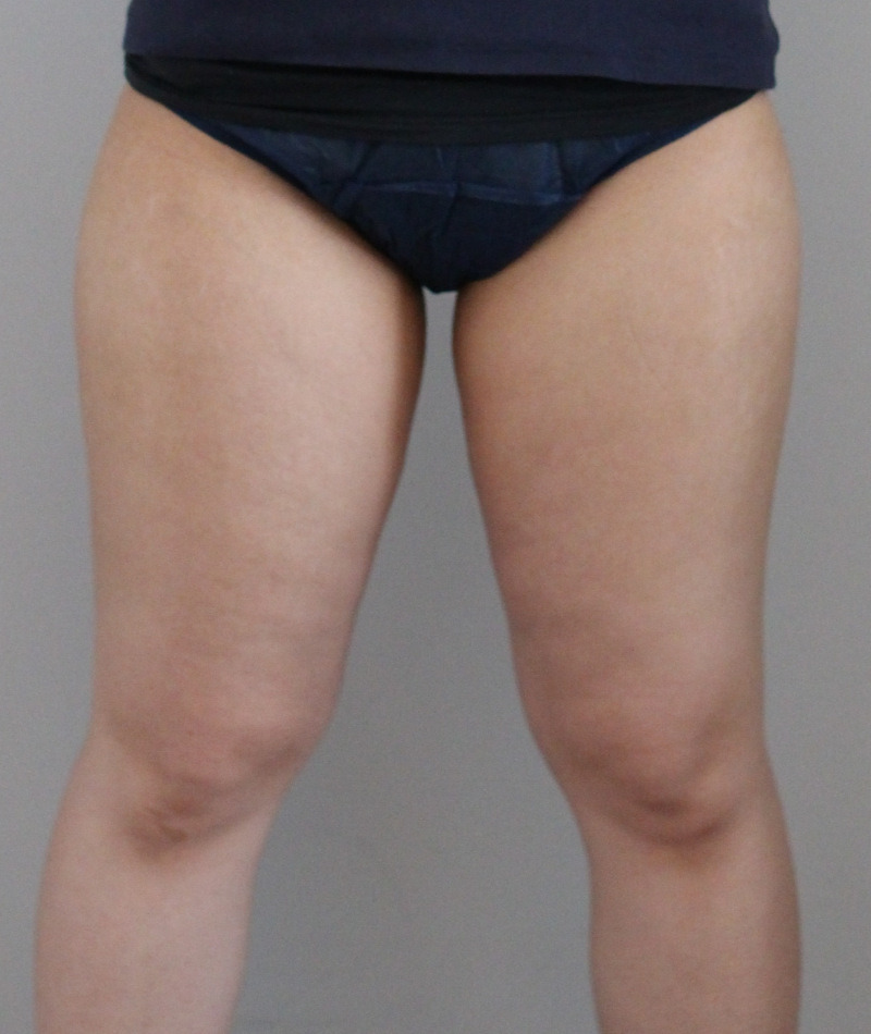 太もも - ライポソニックスの症例写真(施術後)