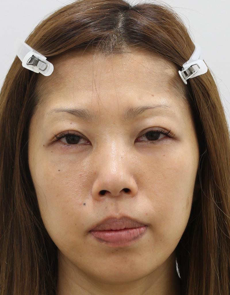 目のクマ・たるみ(膨らみ・凹み)- 脱脂術+リポトランスファー+脂肪注入の症例写真(施術後)