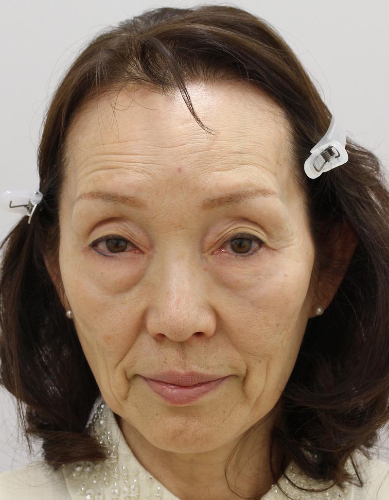 目のクマ・たるみ(膨らみ・凹み)- 脱脂術+ピュアグラフティングの症例写真(施術前)