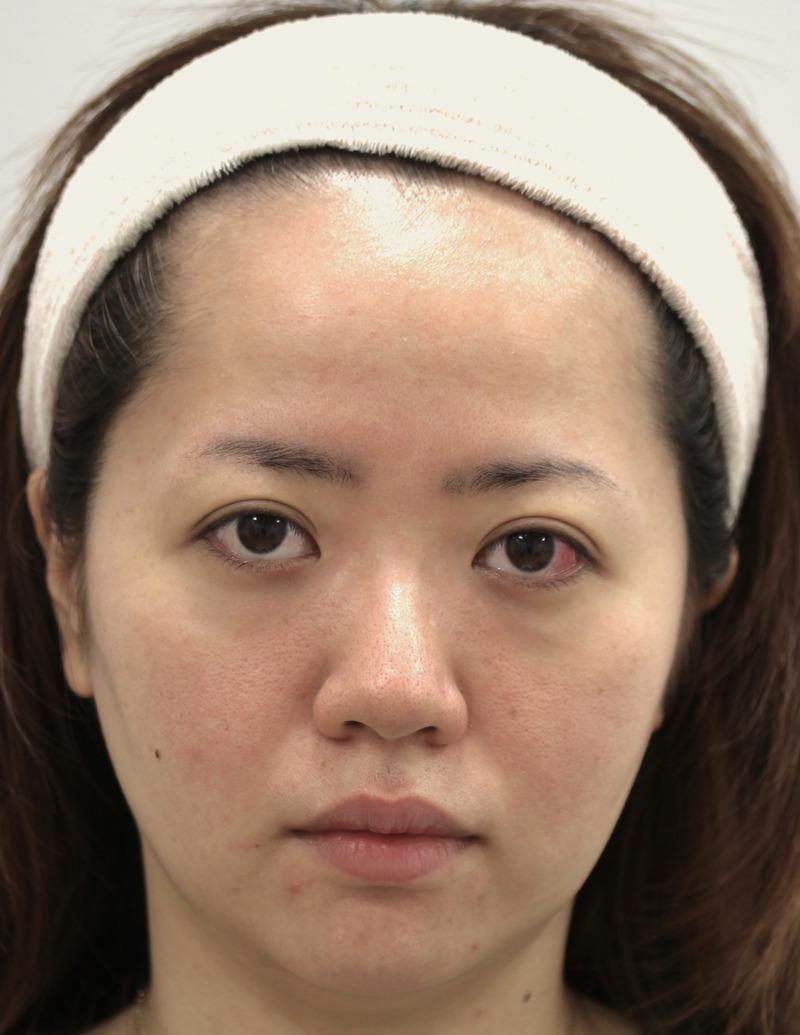 顔のたるみ(シワ・ほうれい線)- バッカルファット除去、新世代スレッドリフトの症例写真(施術前)