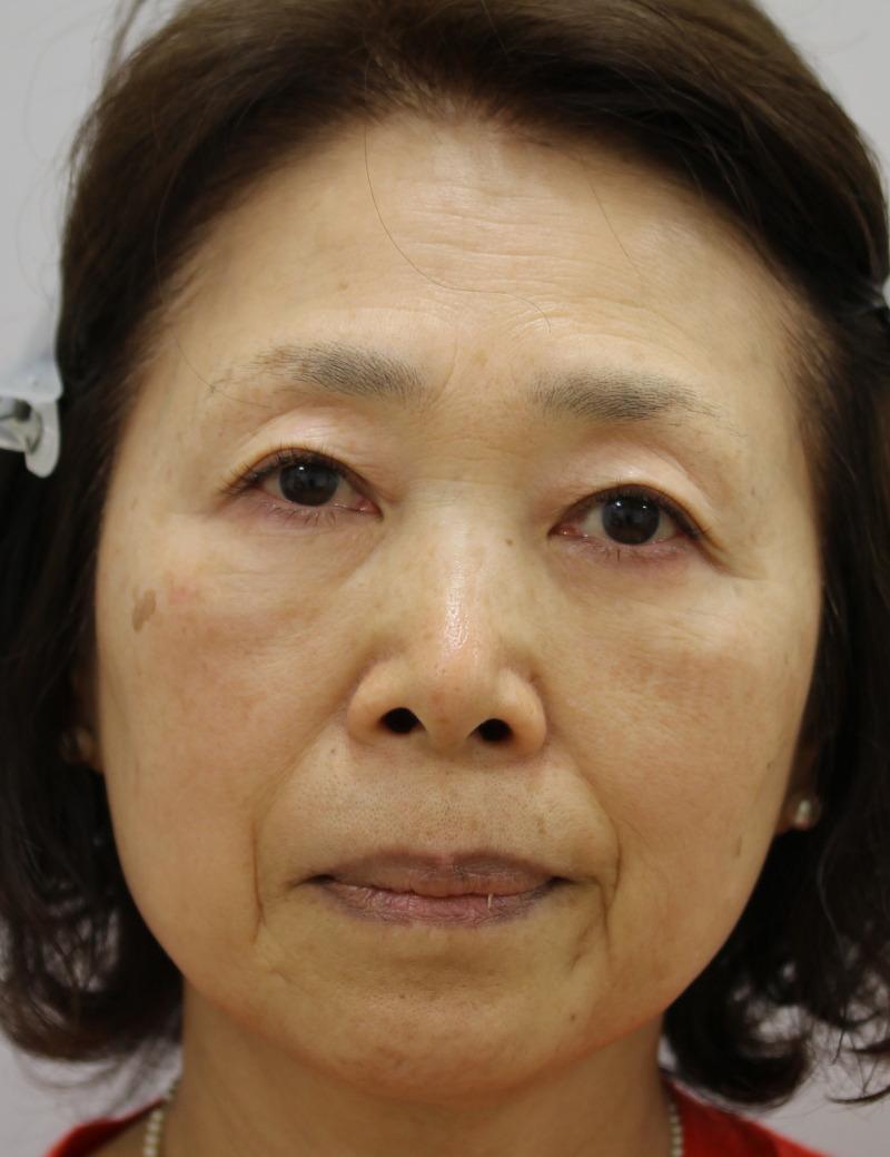 目のクマ・たるみ(膨らみ・凹み)- 脱脂術+ピュアグラフティングの症例写真(施術後)