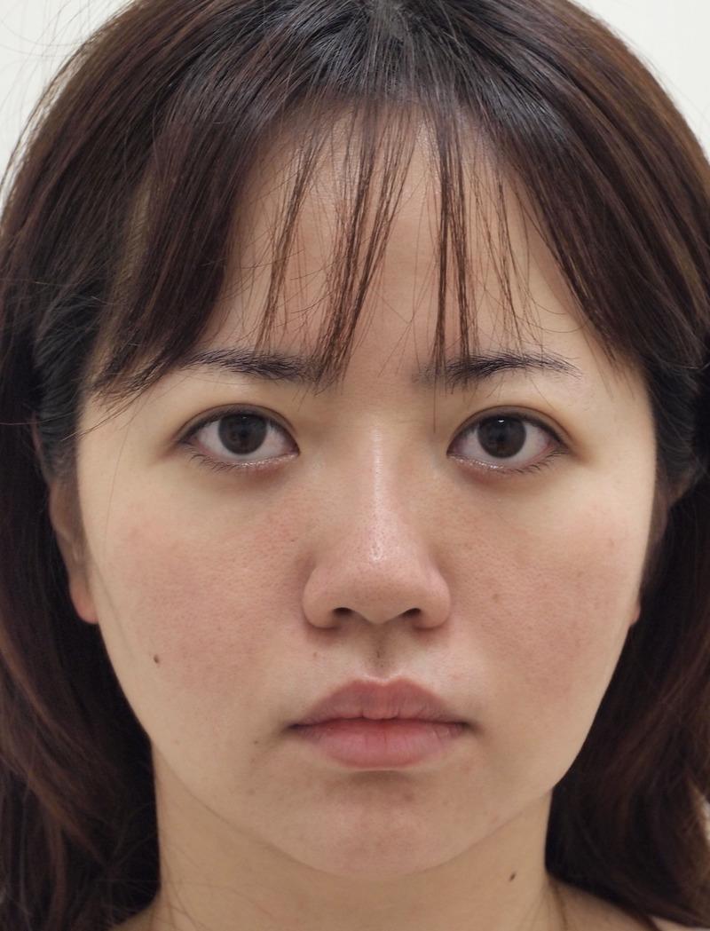 顔のたるみ(シワ・ほうれい線)- バッカルファット除去、新世代スレッドリフトの症例写真(施術後)