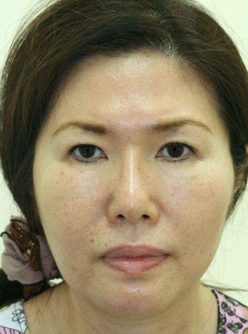 顔のたるみ(シワ・ほうれい線)- リードファインリフトの症例写真(施術後)