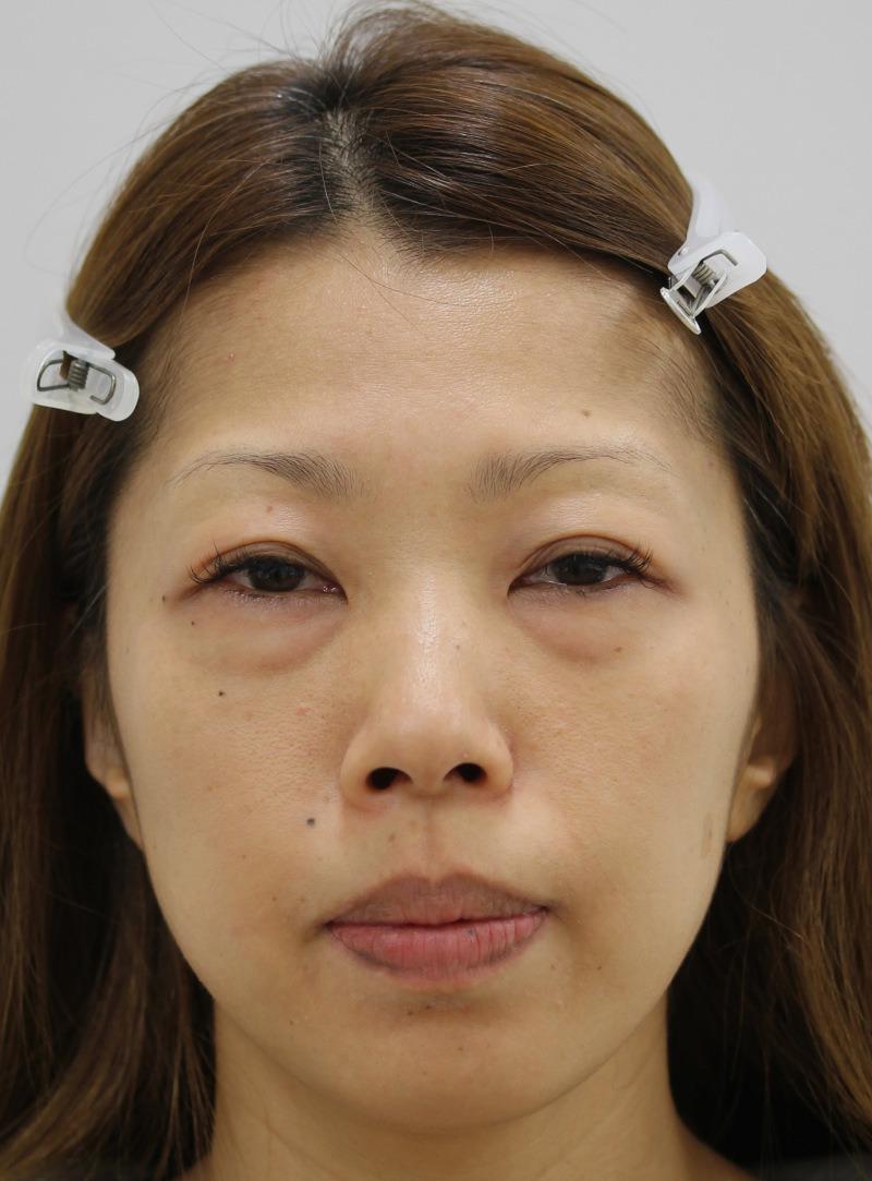目のクマ・たるみ(膨らみ・凹み)- 脱脂術+リポトランスファー+脂肪注入の症例写真(施術前)