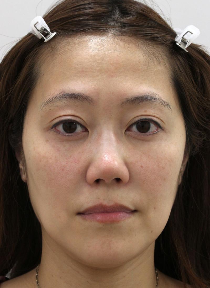 顔のたるみ(シワ・ほうれい線)- 新世代スレッドリフトの症例写真(施術前)