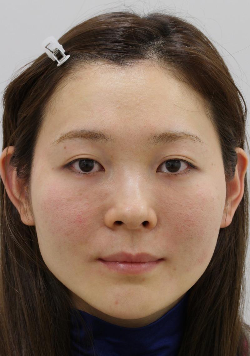 顔のたるみ(シワ・ほうれい線)- 新世代スレッドリフトの症例写真(施術後)