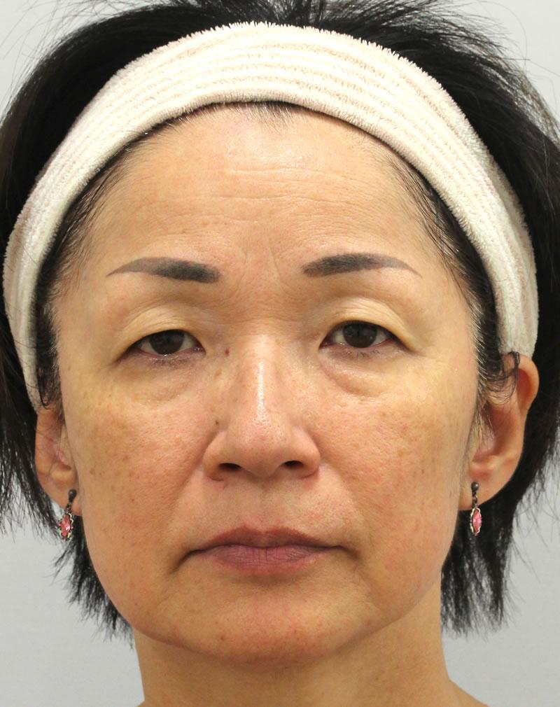 まぶたのたるみ・二重 - 眉毛下切開の症例写真(施術前)
