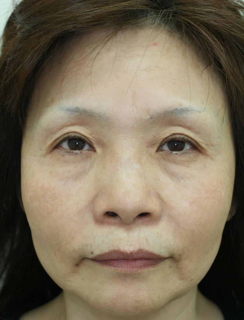 まぶたのたるみ・二重 - 眼瞼下垂術の症例写真(施術後)