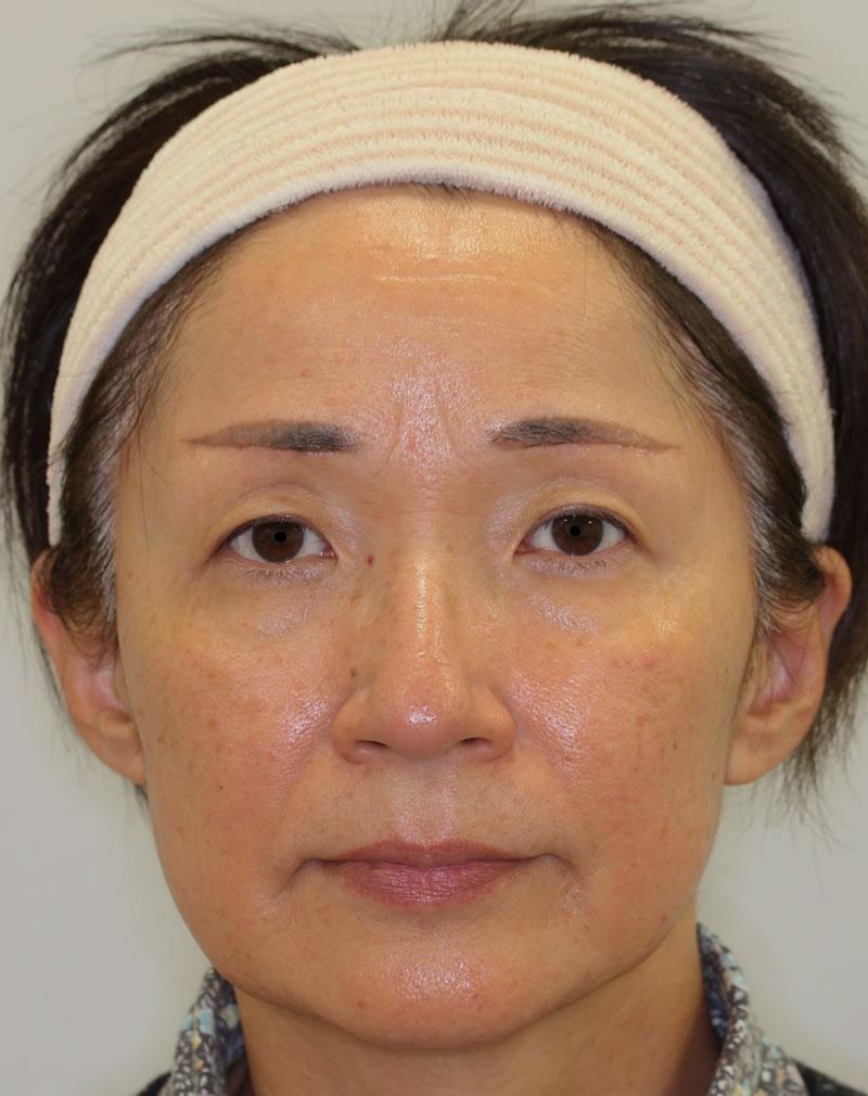 まぶたのたるみ・二重 - 眉毛下切開の症例写真(施術後)