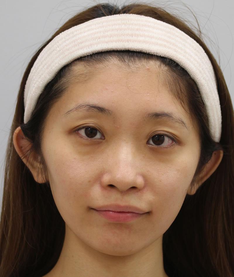 まぶたのたるみ・二重 - A:まぶた 切らない眼瞼下垂術<br> B:目のクマ 脱脂術+ピュアグラフティングの症例写真(施術前)