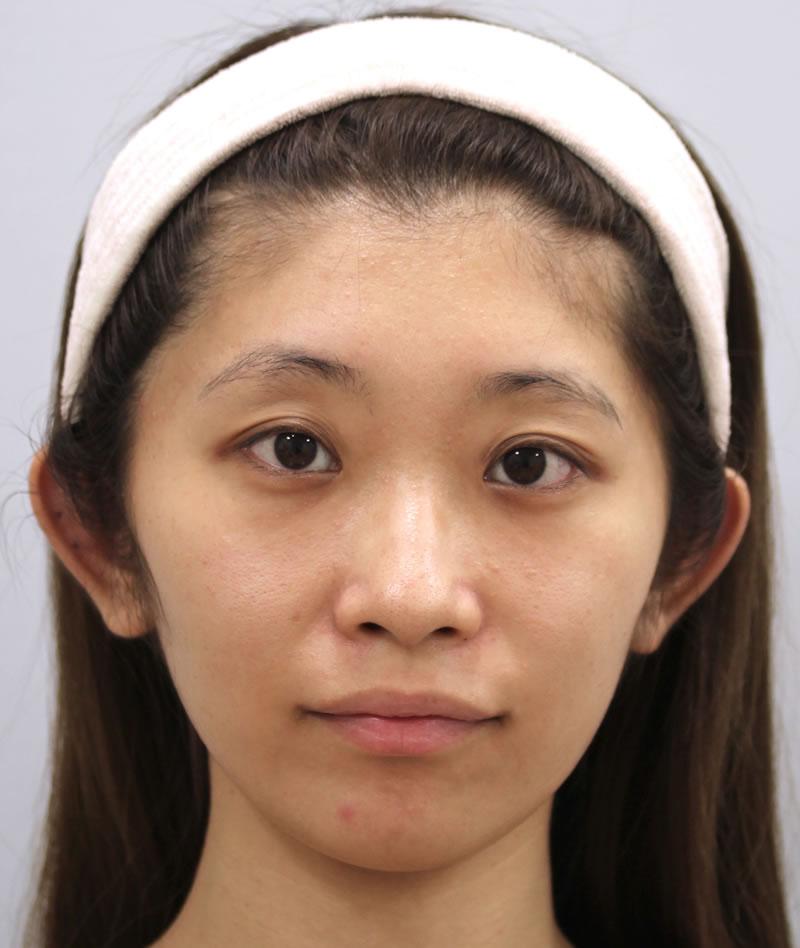 まぶたのたるみ・二重 - A:まぶた 切らない眼瞼下垂術<br> B:目のクマ 脱脂術+ピュアグラフティングの症例写真(施術後)