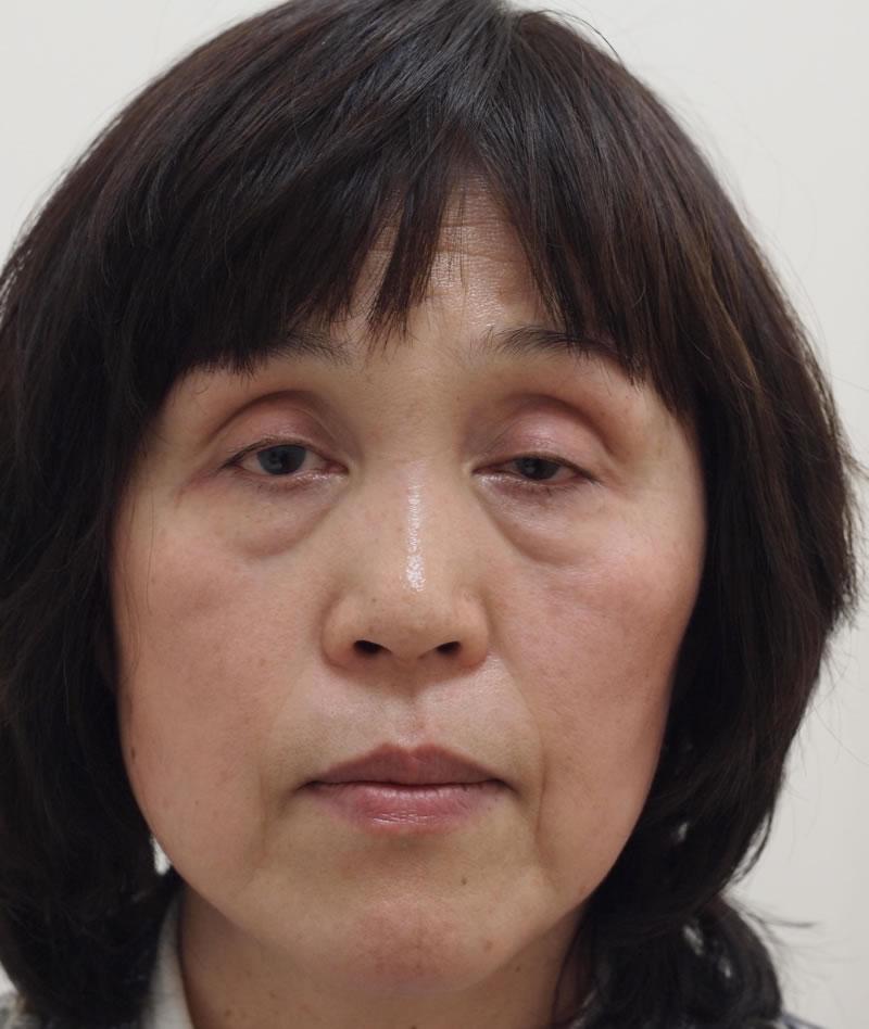 顔のたるみ(シワ・ほうれい線)- A:まぶた 眼瞼下垂術<br> B:目のクマ 脱脂術+ピュアグラフティング<br> C:顔のたるみ ヒアルロン酸注入<br>の症例写真(施術前)