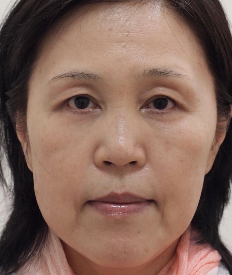 顔のたるみ(シワ・ほうれい線)- A:まぶた 眼瞼下垂術<br> B:目のクマ 脱脂術+ピュアグラフティング<br> C:顔のたるみ ヒアルロン酸注入<br>の症例写真(施術後)