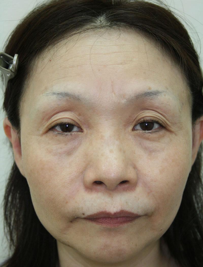 50代 女性 - 眼瞼下垂術(ビフォー)