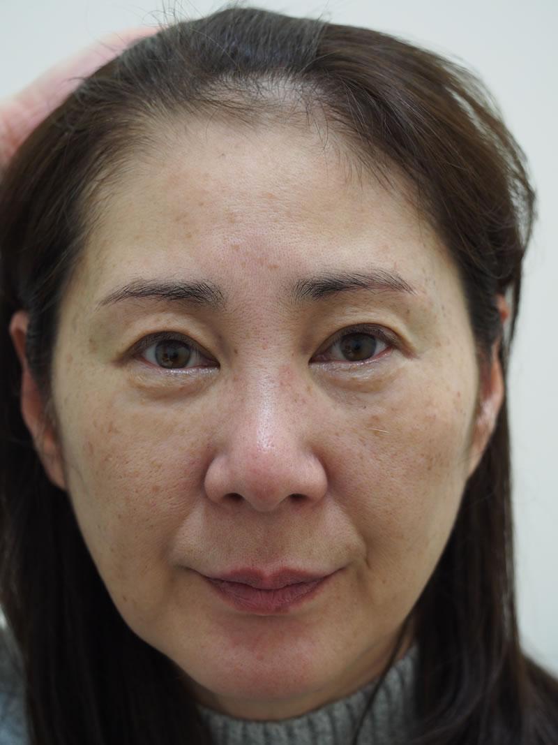 まぶたのたるみ・二重 - A:眼瞼下垂術<br> B:上眼瞼ROOF切除<br> C:上眼瞼リフト(眉毛下切開)の症例写真(施術後)