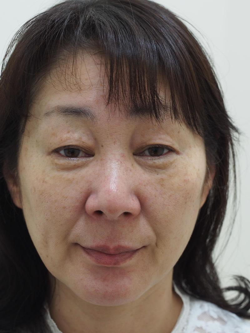まぶたのたるみ・二重 - A:眼瞼下垂術<br> B:上眼瞼ROOF切除<br> C:上眼瞼リフト(眉毛下切開)の症例写真(施術前)