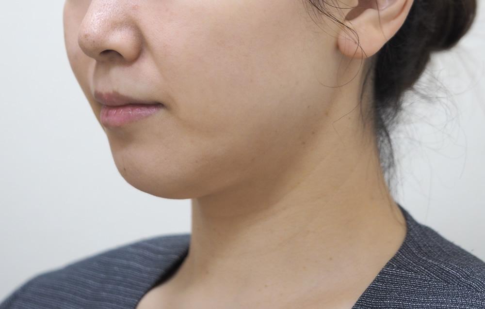 顔のたるみ(シワ・ほうれい線) - ウルトラセルQプラス(リニア)4回の症例写真(施術前)