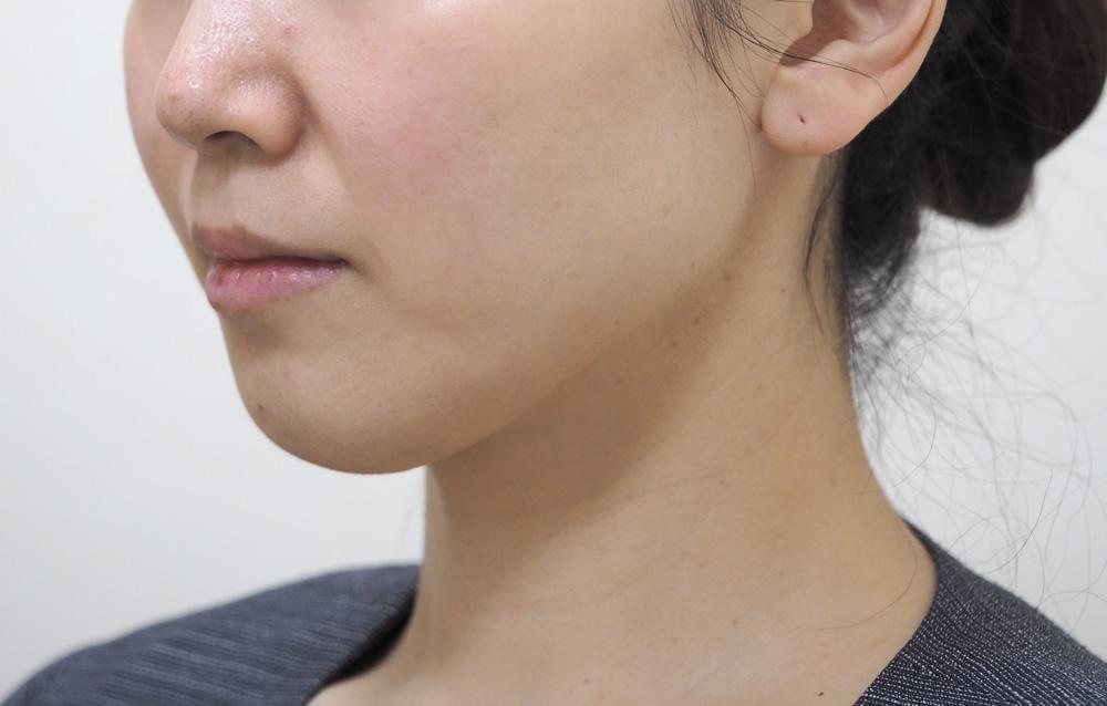顔のたるみ(シワ・ほうれい線)- ウルトラセルQプラス(リニア)4回の症例写真(施術後)