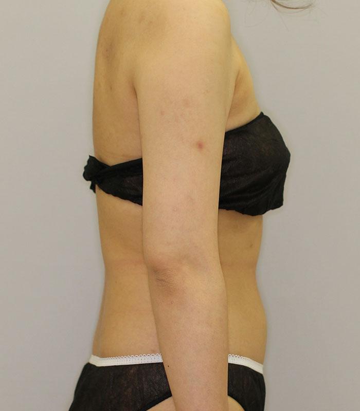 二の腕 - クールスカルプティング(中サイズ 左右2箇所ずつ)の症例写真(施術後)