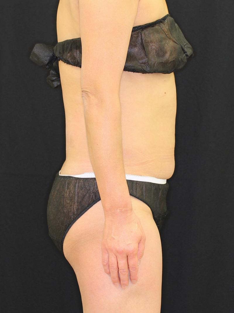 下腹部 - クールスカルプティング(中サイズ 2箇所)の症例写真(施術後)