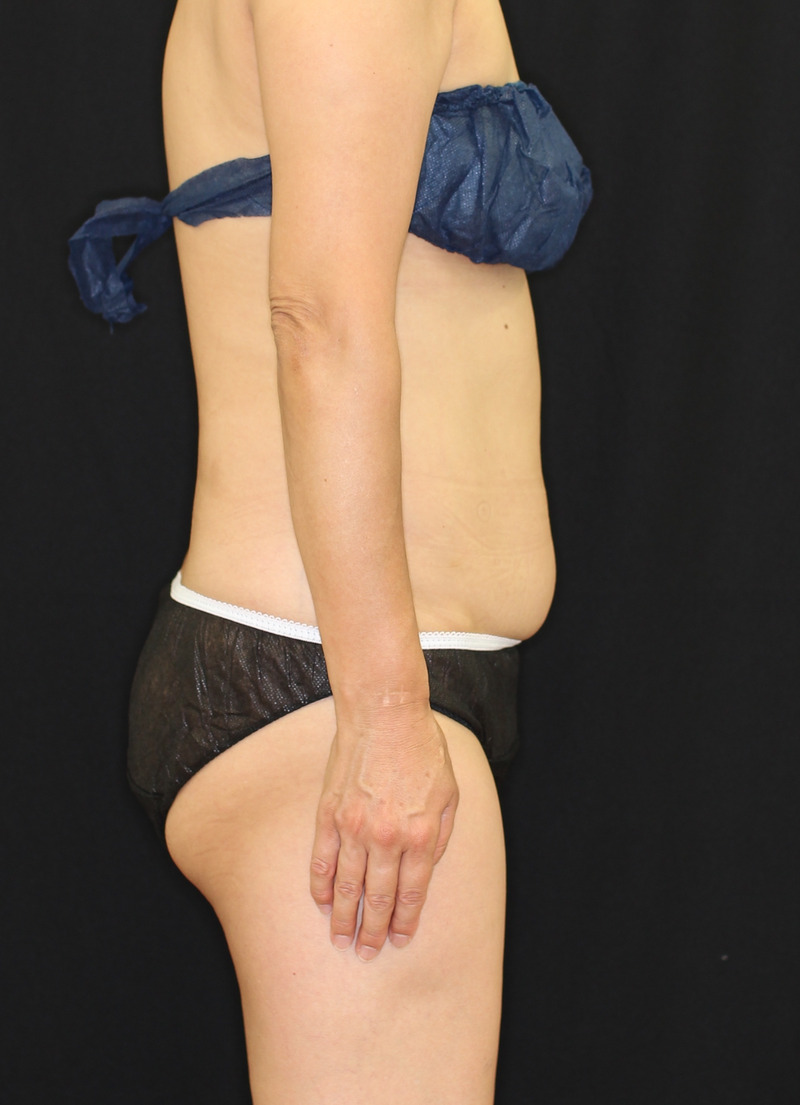 下腹部 - クールスカルプティング(中サイズ 2箇所)の症例写真(施術前)