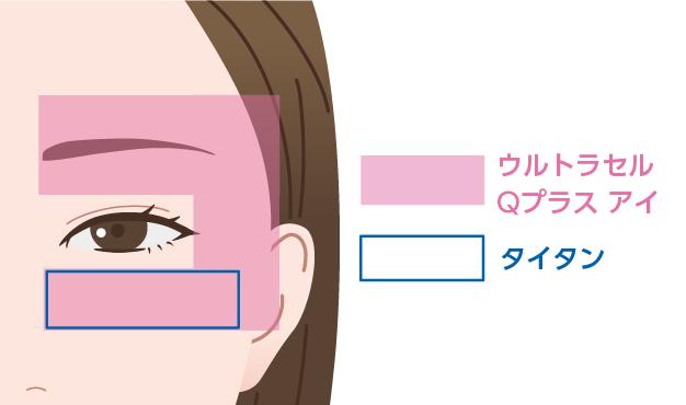 目元ギリギリまで照射可能な目元専用のHIFUを照射します